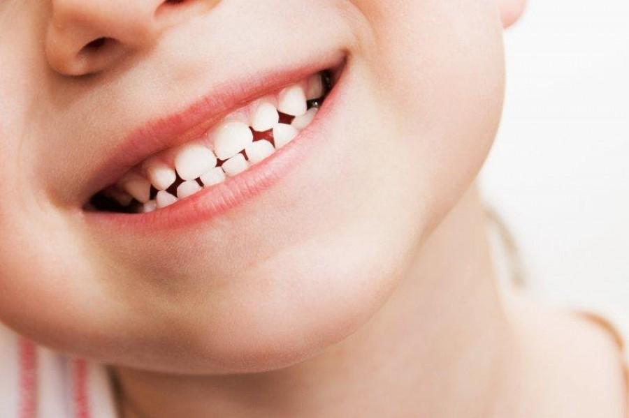 Кариес у детей: способы профилактики у стоматолога и в домашних условиях